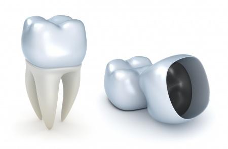 מידע על השתלות של שיניים